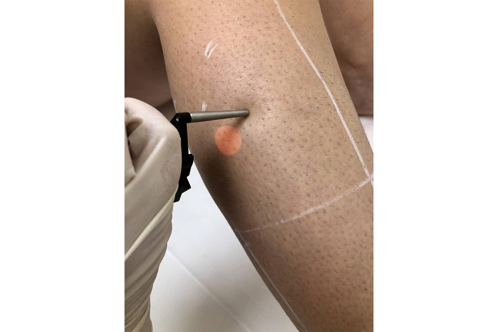 laser depilatoire 5