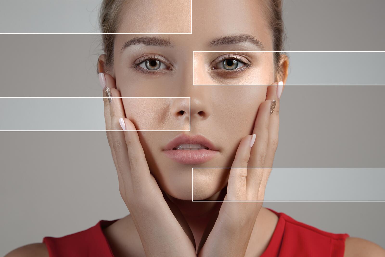 visage - Peau sans éclat, sécheresse cutanée, pores dilatés 1