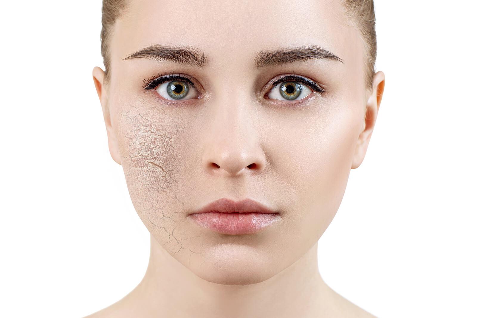 visage - Peau sans éclat, sécheresse cutanée, pores dilatés 2