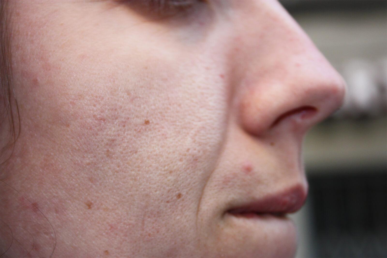 visage - Peau sans éclat, sécheresse cutanée, pores dilatés 3