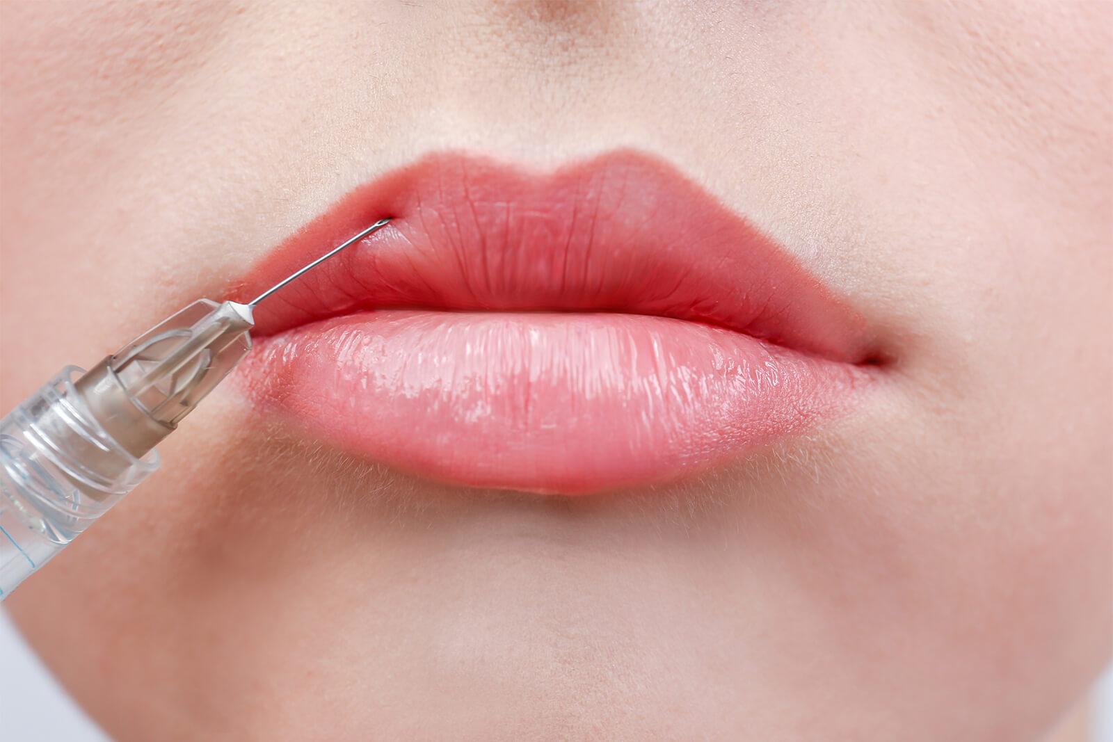 visage - embellissement lèvres 1