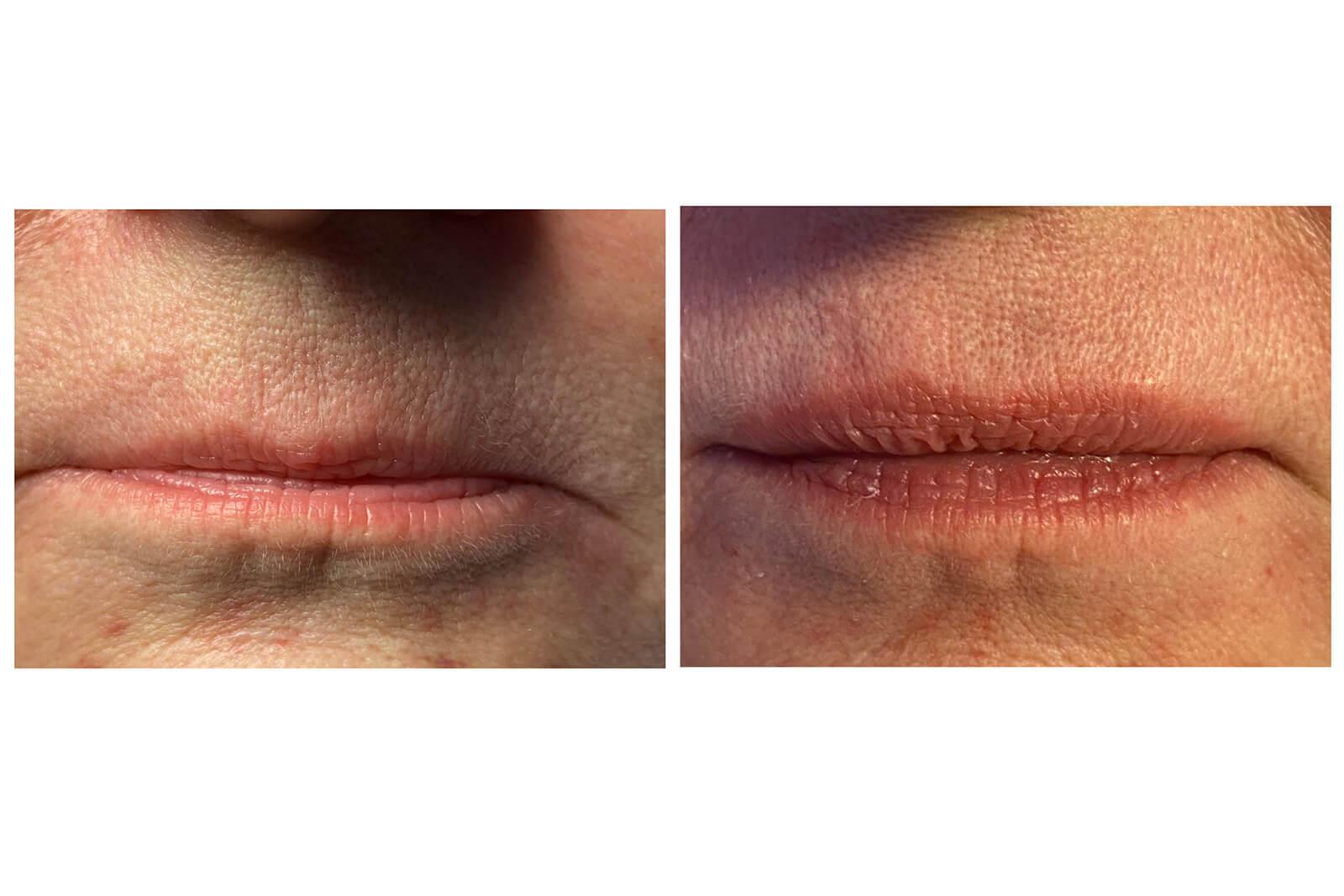 visage - embellissement lèvres 2