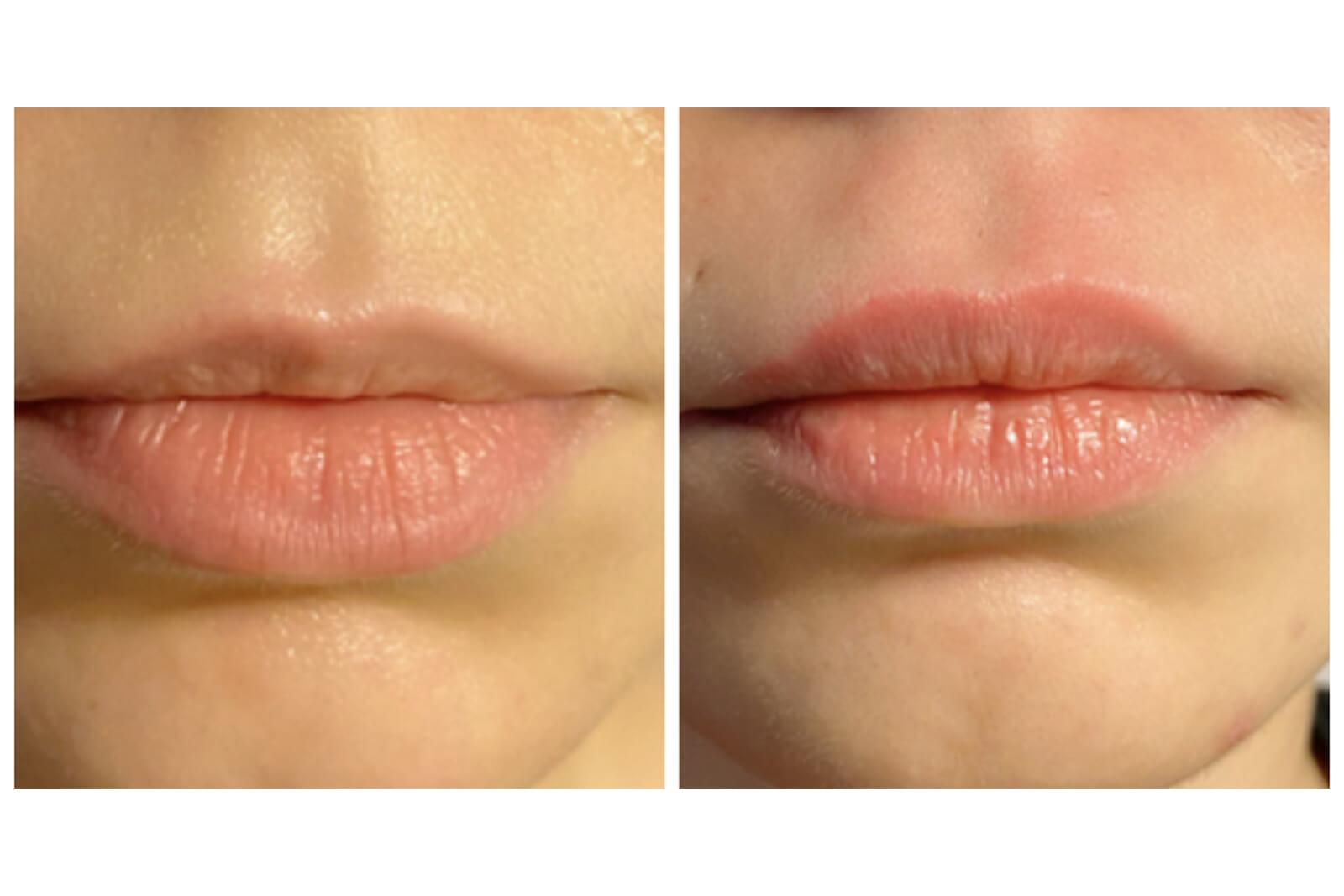 visage - embellissement lèvres 3