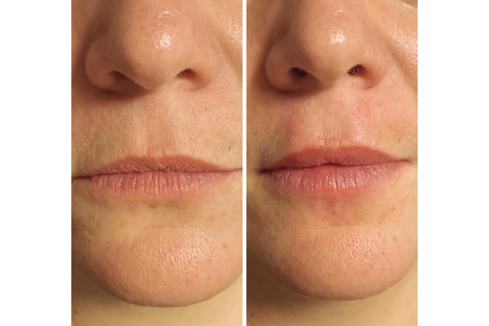 visage - embellissement lèvres 4