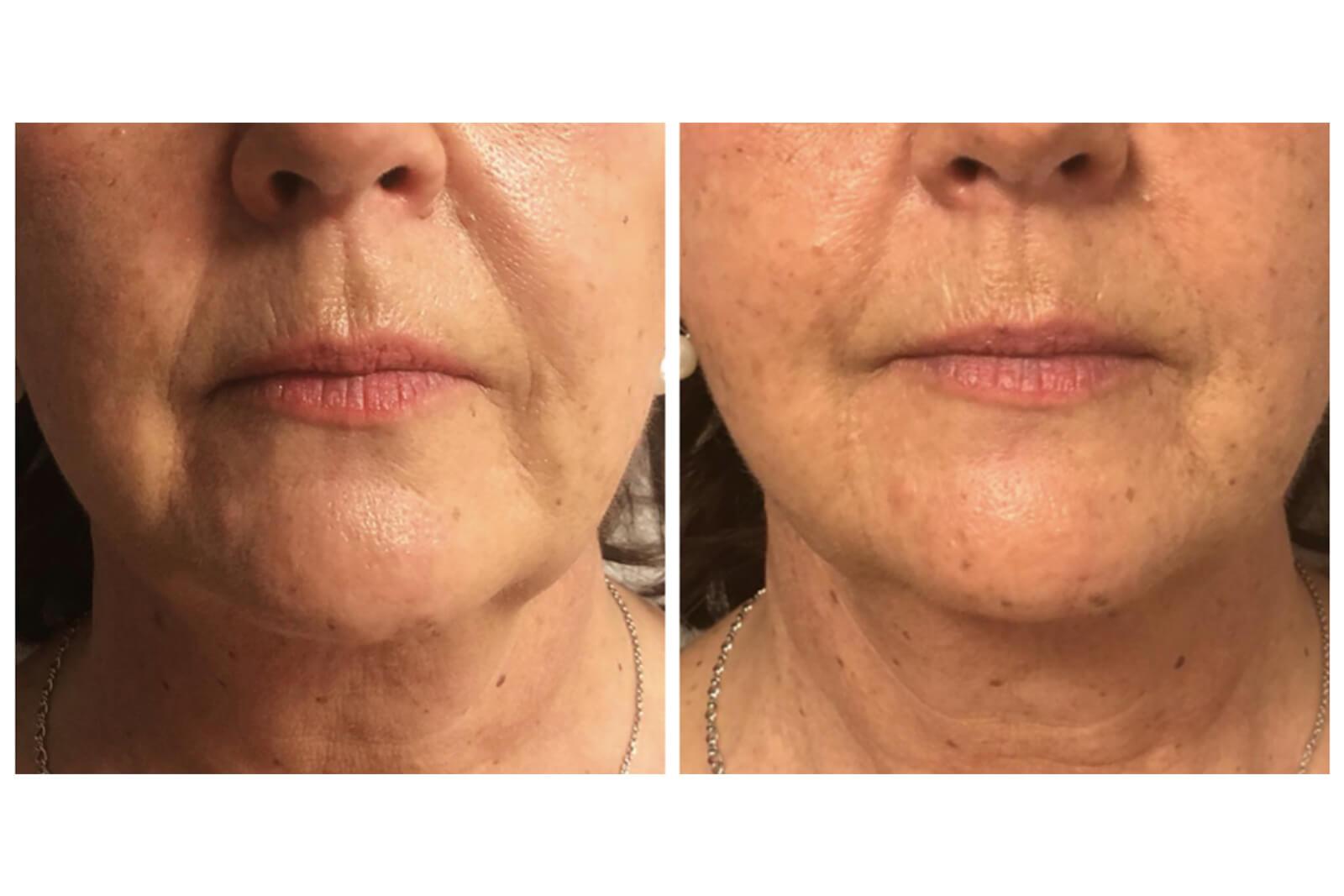 visage - restructuration visage ou profiloplastie 2