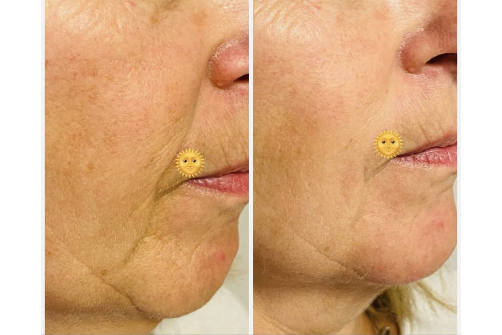visage - restructuration visage ou profiloplastie 3