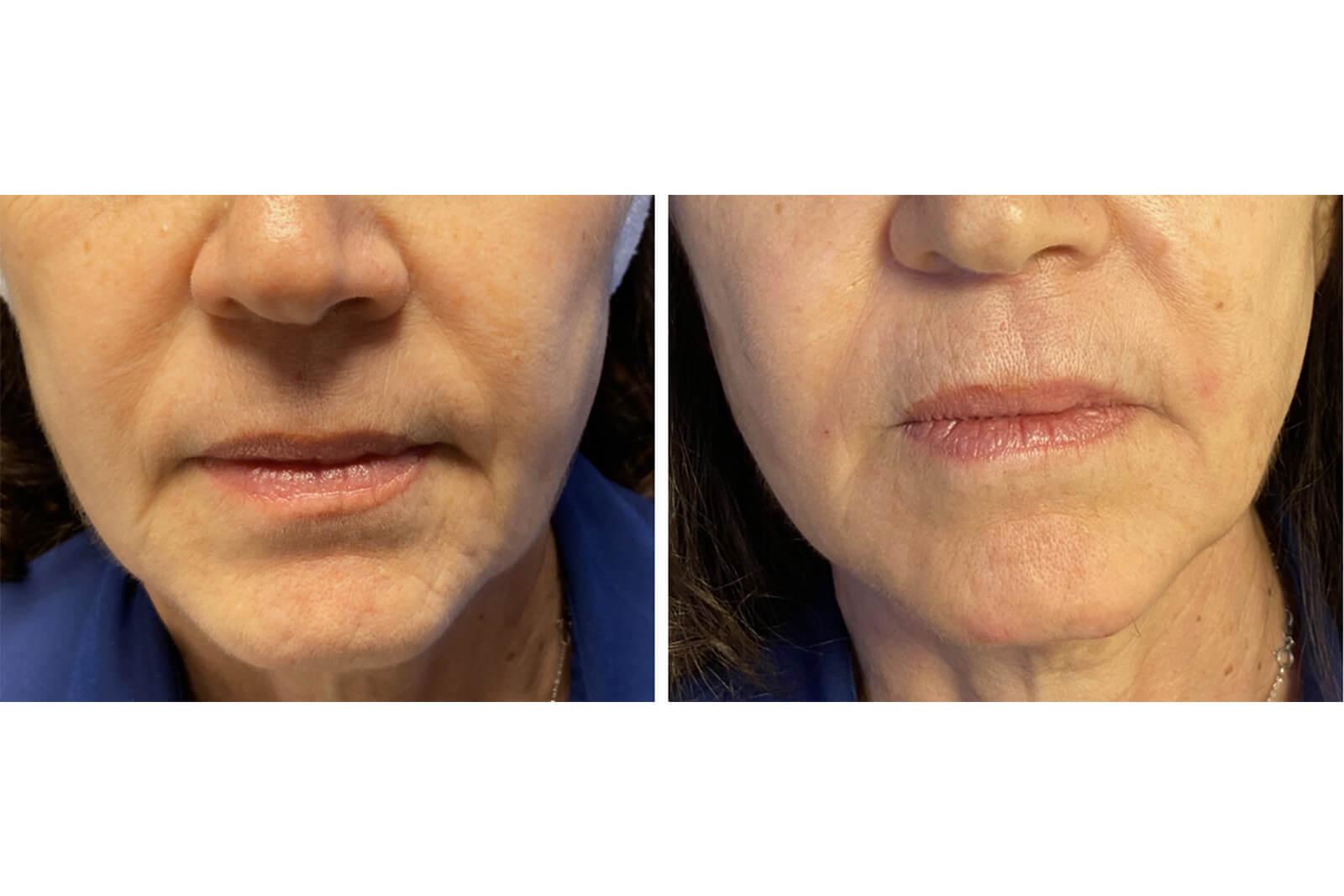 visage - restructuration visage ou profiloplastie 4